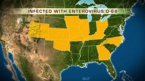 Enterovirus-D68--EV-D68-jpg-1